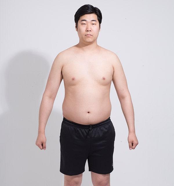 バノバギ脂肪吸引
