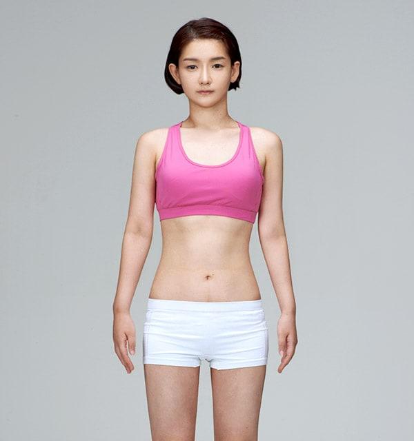 全身脂肪吸引3