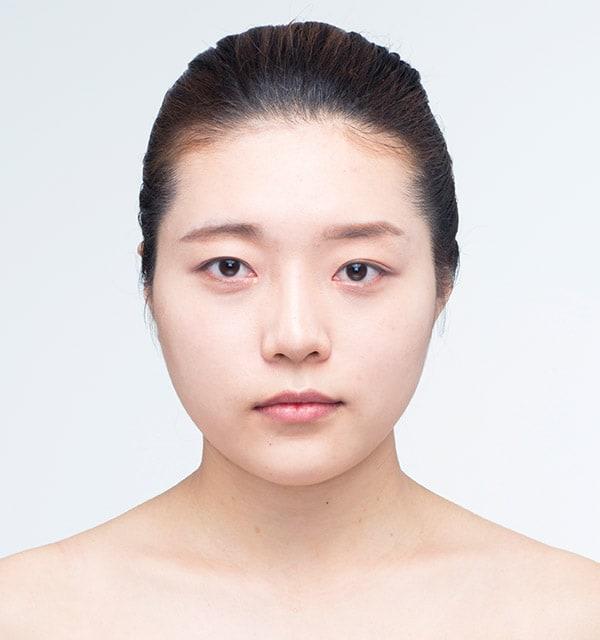 目の美容整形/再手術