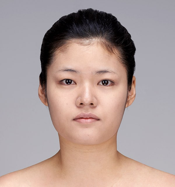 エラ顎手術