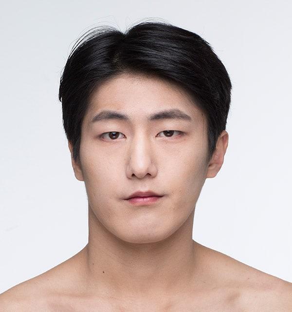 男性の美容整形は韓国バノバギ美容外科