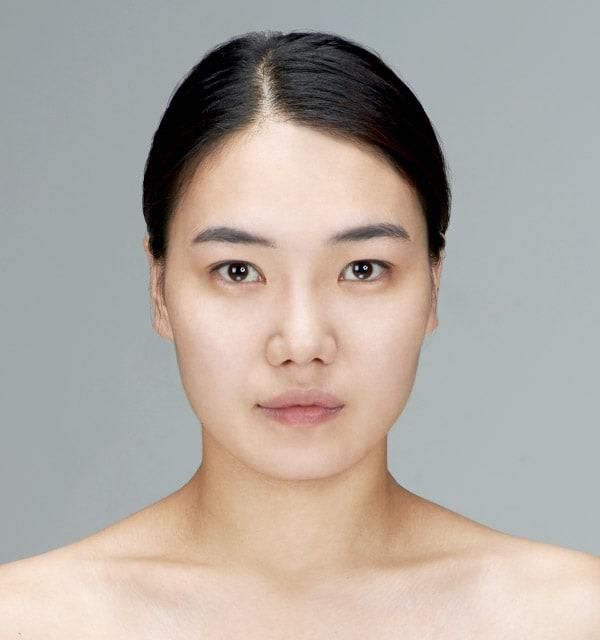 目の形の目再手術3