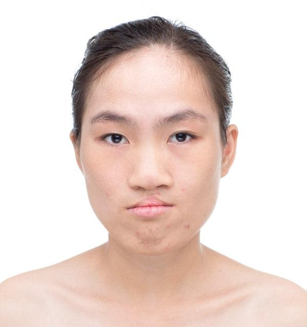 大きな鼻 縮小術3