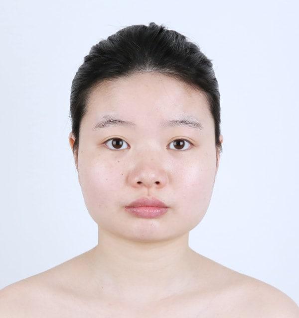 大きな鼻 縮小術