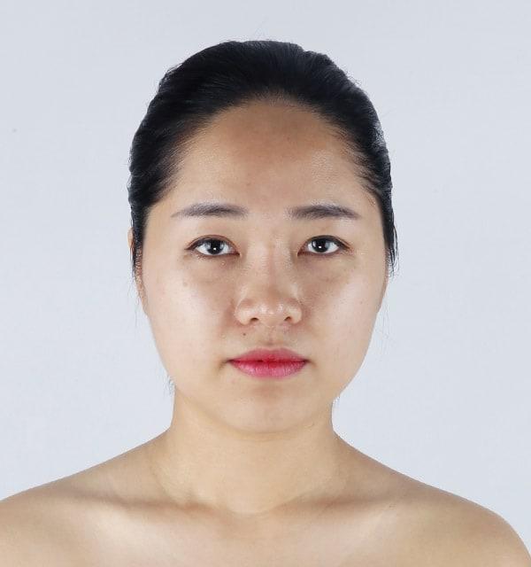 BANOBAGI二重の手術