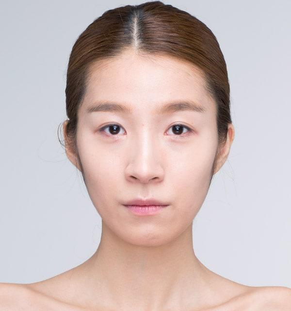 大きな鼻 縮小術2