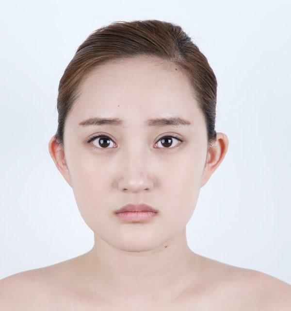 顎先の手術