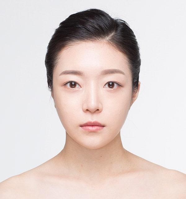 目の形の目再手術4