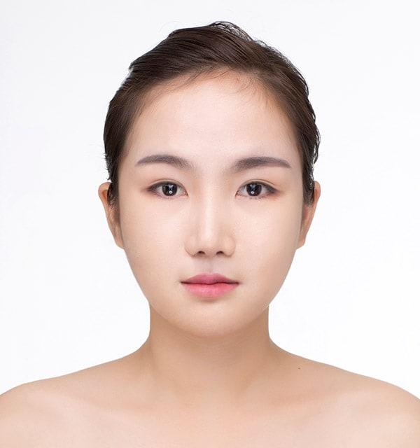大きな鼻 縮小術6