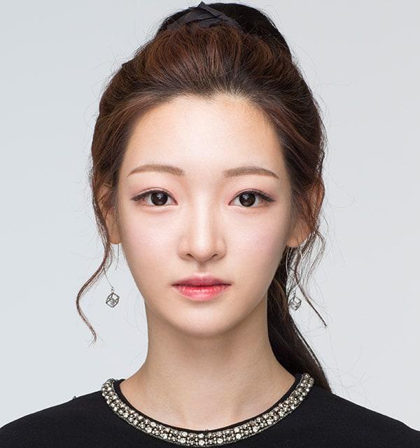 目の形の目再手術