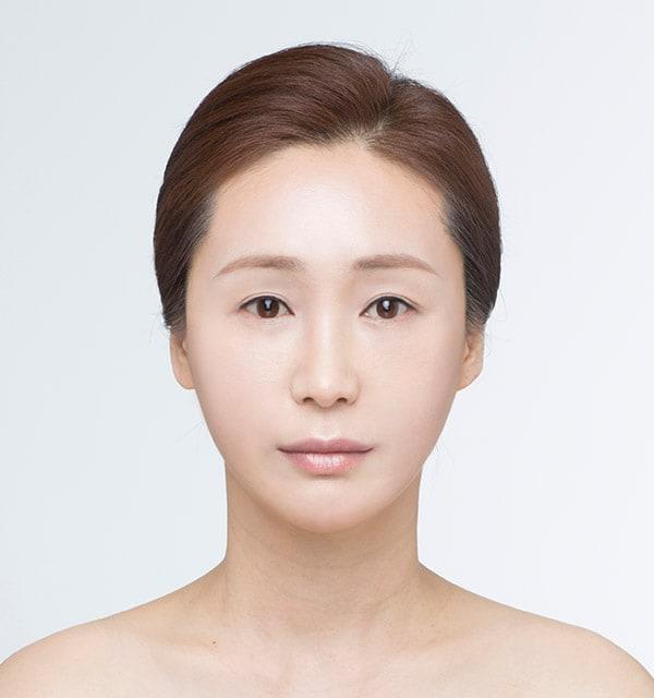 大きな鼻 縮小術5
