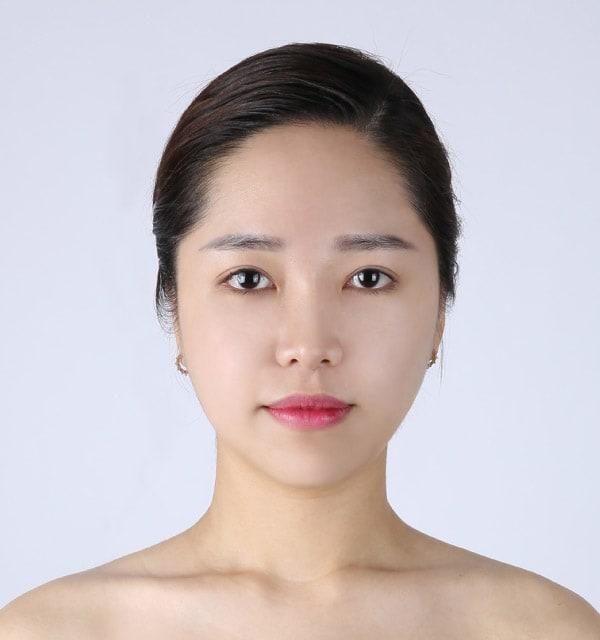 大きな鼻 縮小術4