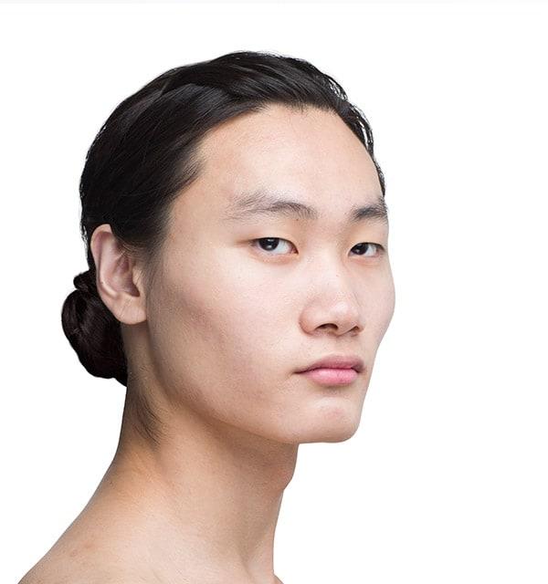 類型別鼻整形