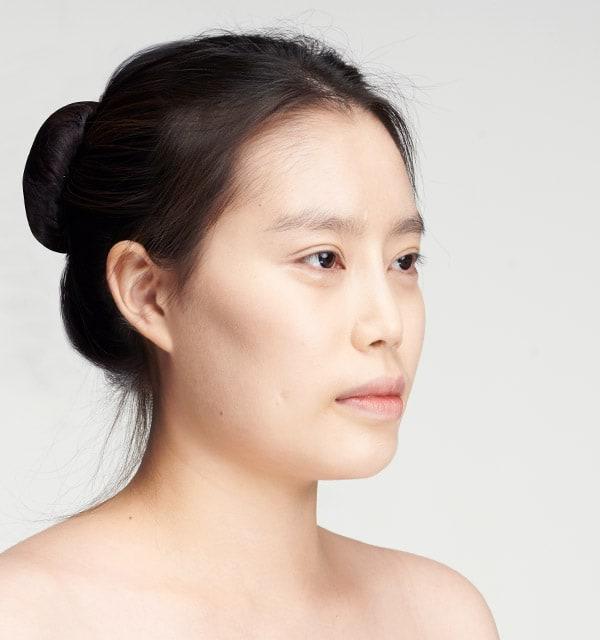 女性の頬骨手術