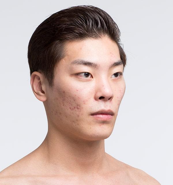 男性の頬骨手術