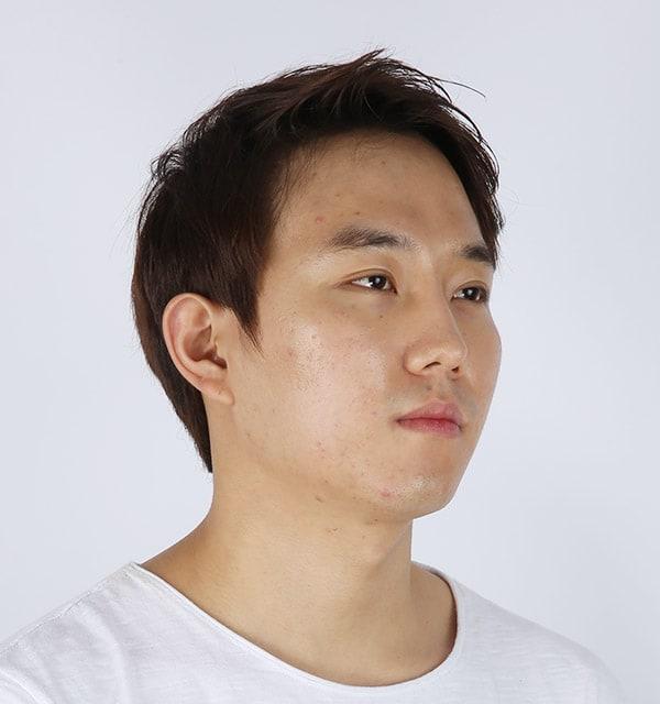 男性の頬骨手術2