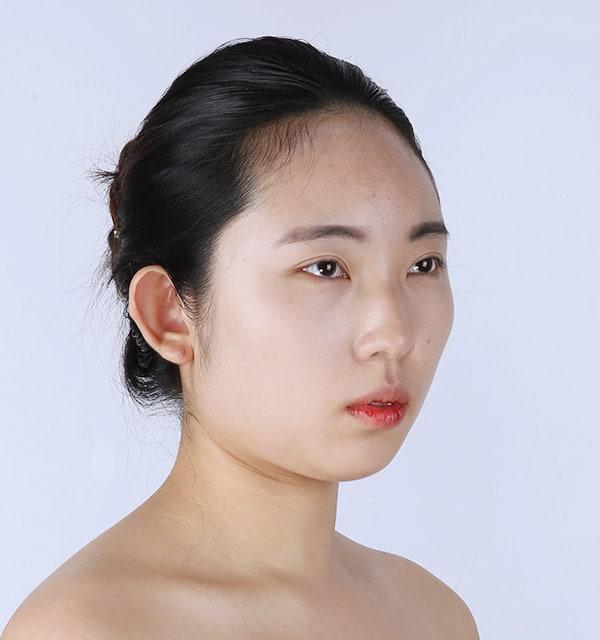 低い鼻 整形
