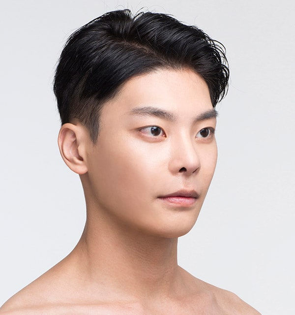 男性の頬骨手術3